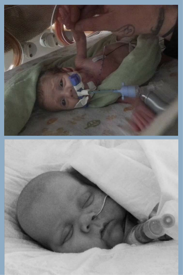 Siblings of Preemies, Ethan's Journey