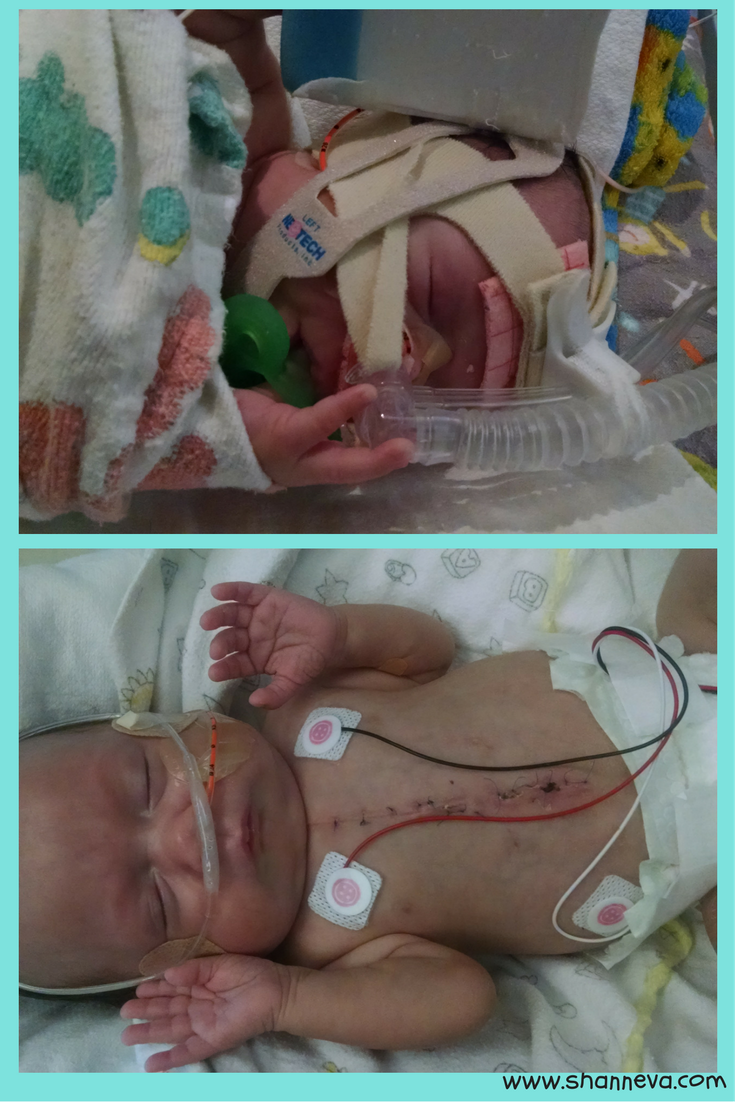 A journey from fertility to NICU