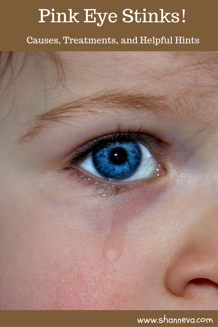 Pink Eye is a highly contagious and very common childhood illness. I'm sharing the signs, treatment options, and helpful tips to get you and your child through this infection.