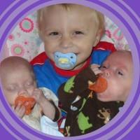 Problems of a Premature Birth