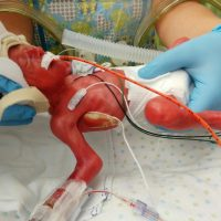 Micro Preemie Adoption