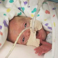 Micro preemie milestones
