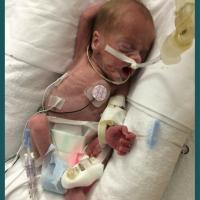 25 Weeks Gestation: Ephraim's Story