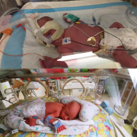 A Different NICU: A Different Experience