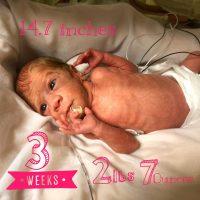 NICU Nurse, but Mom First: Blakelee's Story