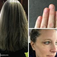 Hair, nails, skin help needed